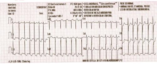 fibrilacion auricular con respuesta ventricular rapida